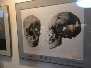 石田三成の頭蓋骨